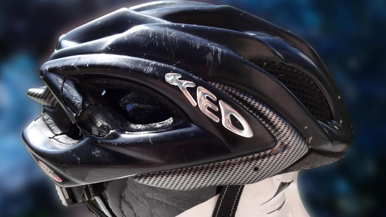 Save your ass - wear a helmet.